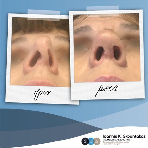παραμορφωμένη μύτη γυναίκας πριν και μετά τη ρινοπλαστική