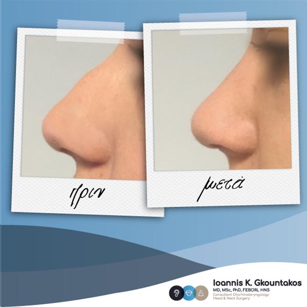 προφίλ γυναικείας μύτης πριν και μετά την ρινοπλαστική