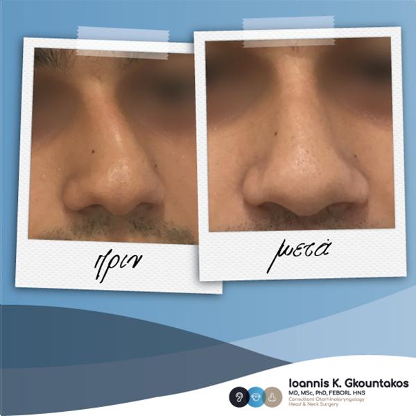 άντρας με στραβή μύτη πριν και μετά τη ρινοπλαστική