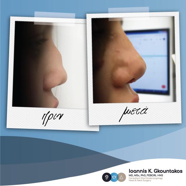 προφίλ γυναικείας σπασμένης μύτης πριν και μετά την ρινοπλαστική