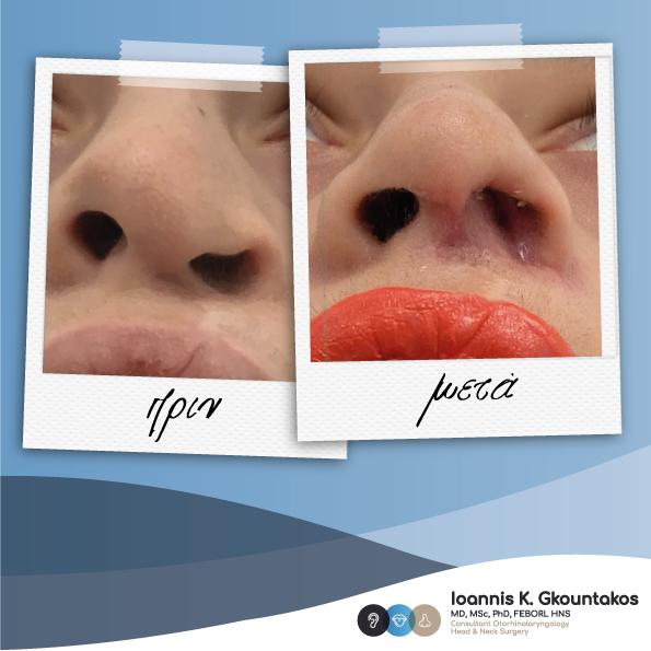 κοντινό γυναικείας μύτης πριν και μετά την ρινοπλαστική