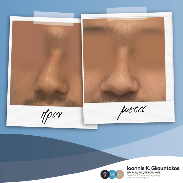 αντρικό πρόσωπο πριν και μετα την ρινοπλαστική